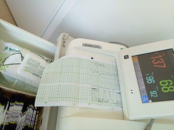 Monitoring maternité accouchement