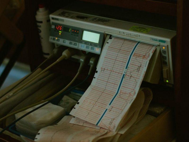 monitoring grossesse