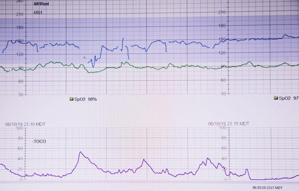 monitoring accouchement Lys
