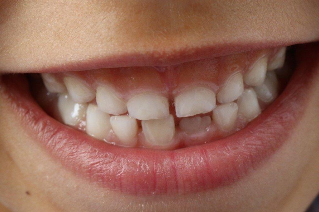 dents, mâchoire enfant, dents de lait